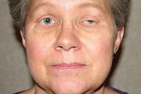 Mujer con síntomas de miastenia