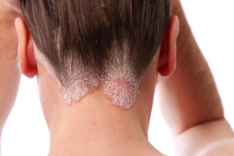Mujer con síntomas de psoriasis en la nuca