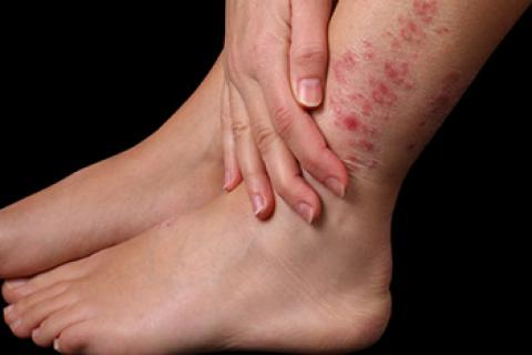 La anamnesia de la enfermedad atopichesky la dermatitis