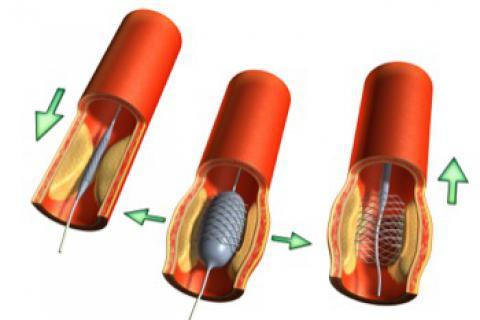 Tratamiento de la arteriosclerosis