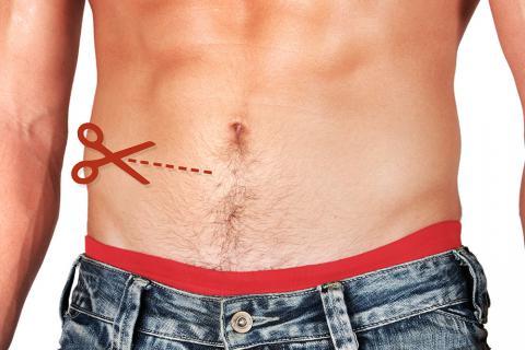 Qué es la apendicitis