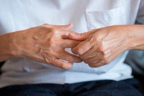 Qué es la artritis reumatoide 07e989bb7439