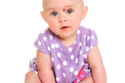 Bebé con un hemangioma sobre la nariz