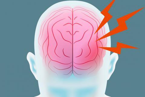 Cerebro con ictus