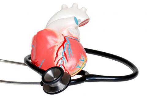 Qué es el infarto de miocardio