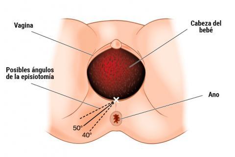 Gráfico de la episiotomia