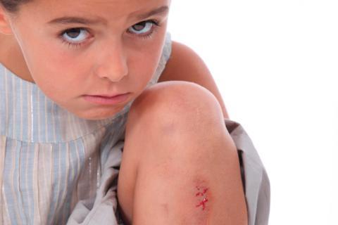 Niña con una raspadura que sangra en la pierna