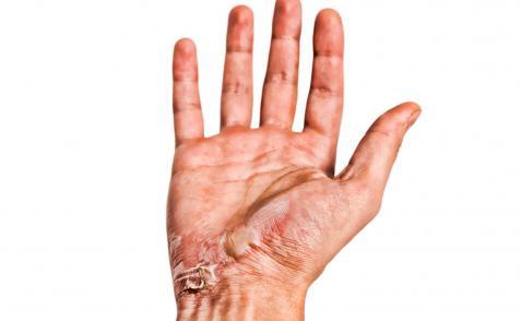 Quemaduras en la mano