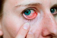 Abrasión corneal