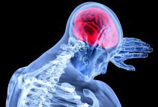 Qué es la encefalitis