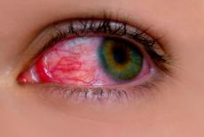 Escleritis, inflamación ocular con dolor y enrojecimiento