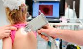 Dermatólogo examinando melanoma