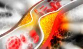 Molécula de arteriosclerosis