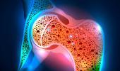Un nuevo fármaco detiene la progresión del cáncer de ovario
