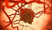 Tumor a causa de una infección