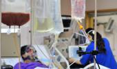 Usan células madre de cordón umbilical para tratar el lupus