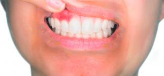Asocian la psoriasis con más riesgo de periodontitis crónica