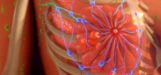 Nueva vía para combatir la metástasis del cáncer de mama