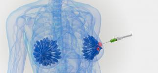 Prueban en pacientes una nueva inmunoterapia contra el cáncer