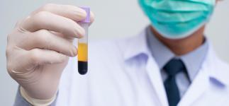 Aplicaciones del plasma enriquecido con factores de crecimiento