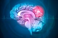 Un nuevo tratamiento de la hemorragia cerebral demuestra eficacia