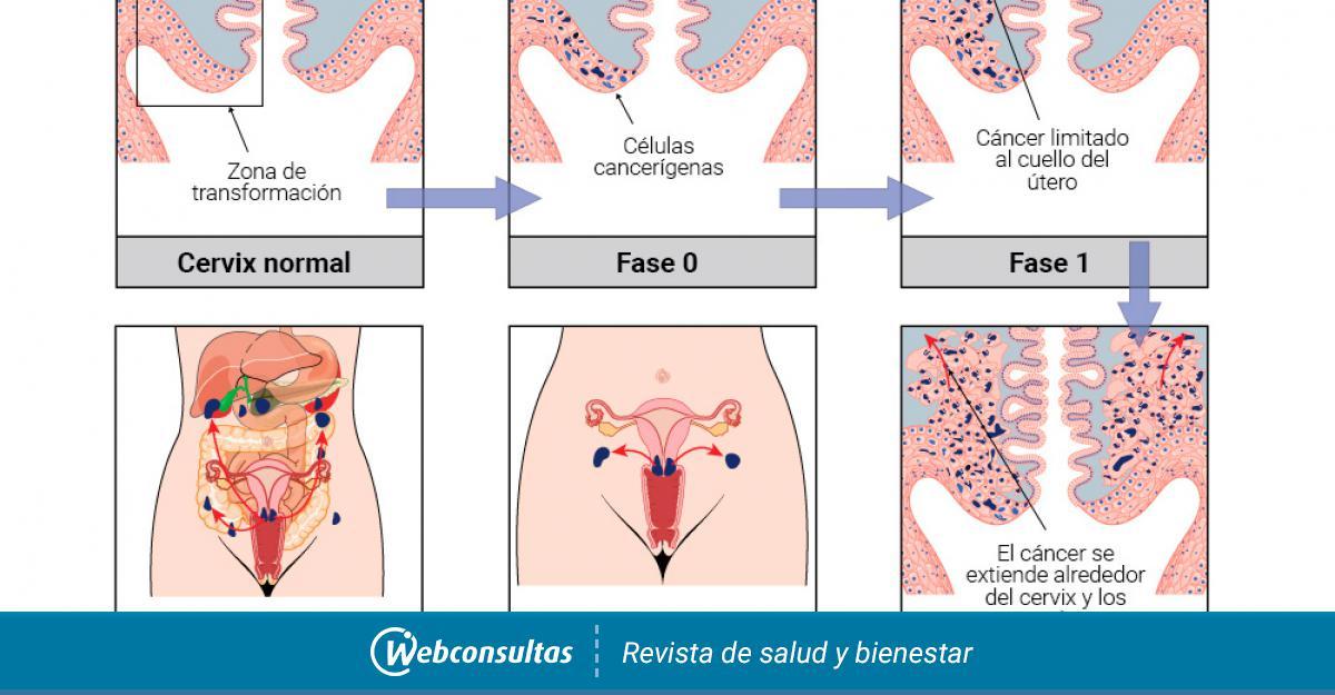 Clasificación y pronóstico del cáncer de cuello de útero