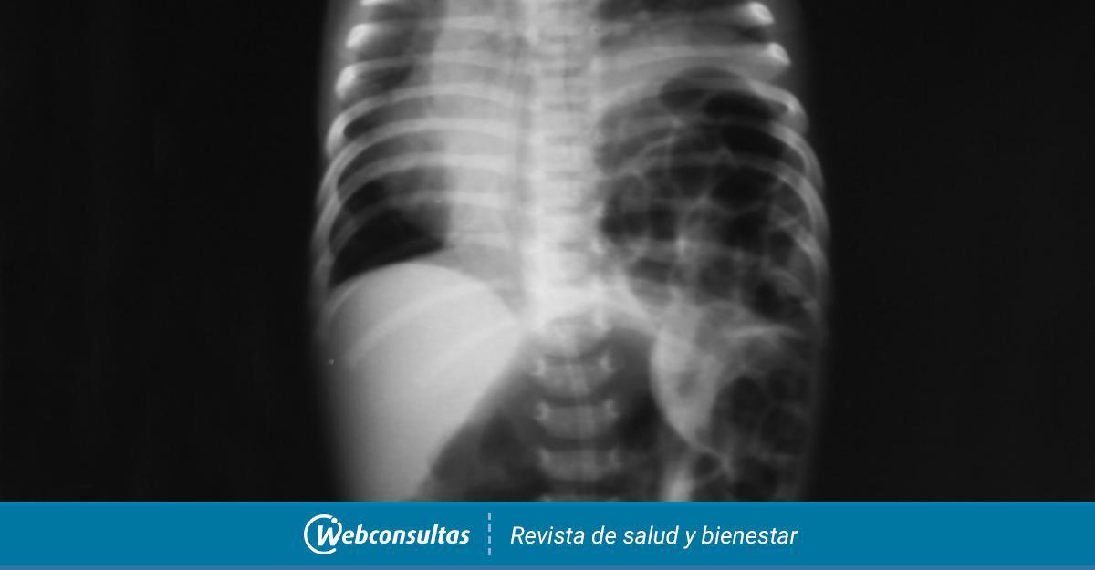 Diagnostico De La Hernia De Hiato