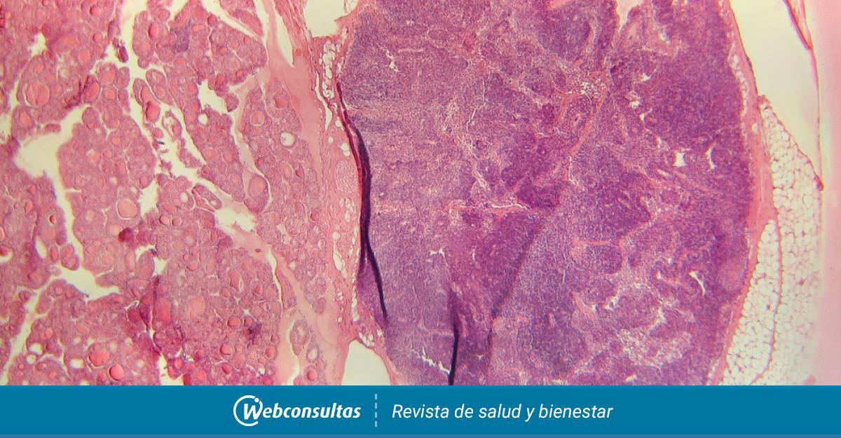 Diagnóstico del hipertiroidismo - Salud al día