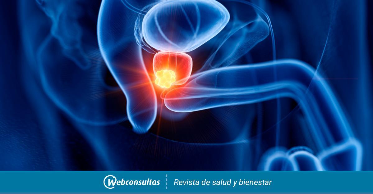 Bcancer prostata