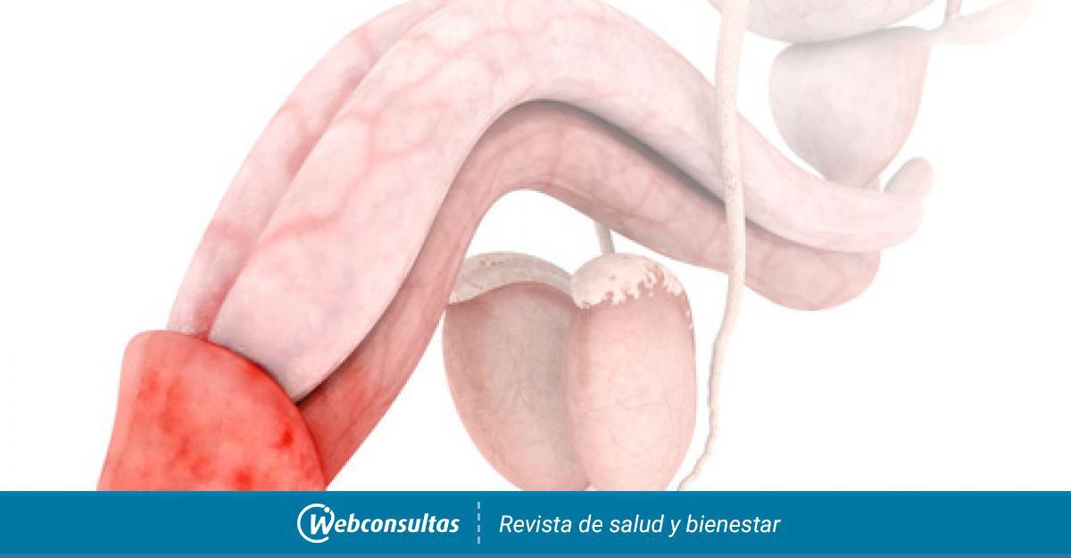 Granos en la uretra masculina