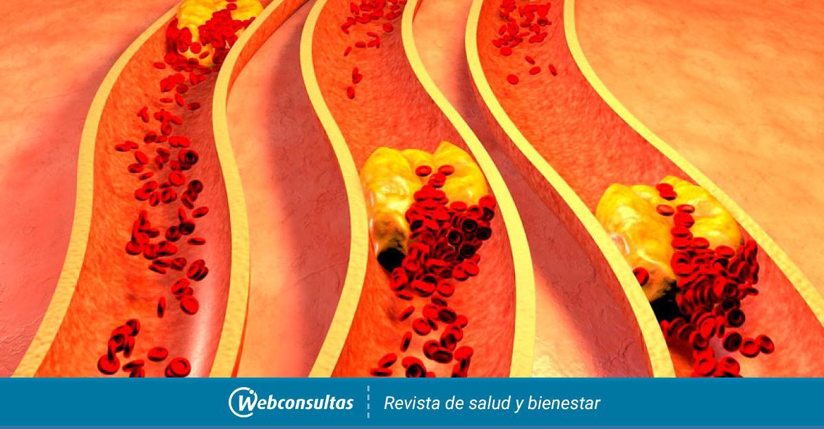 Como prevenir y tratar la hipercolesterolemia