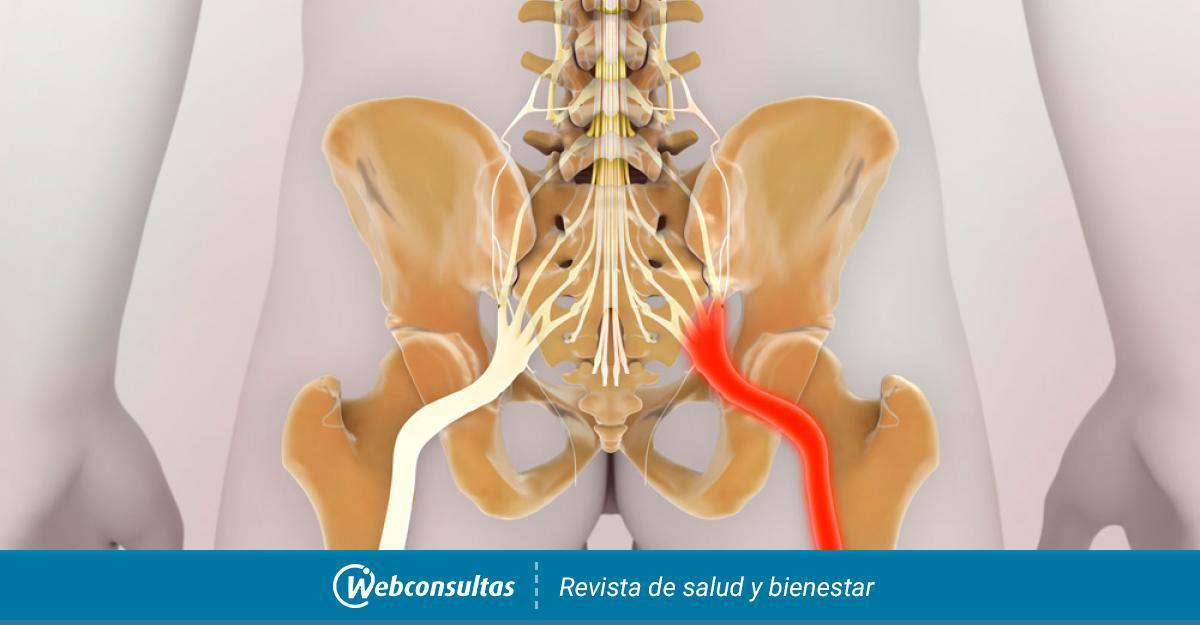 Los ciático del nervio de tratamiento síntomas
