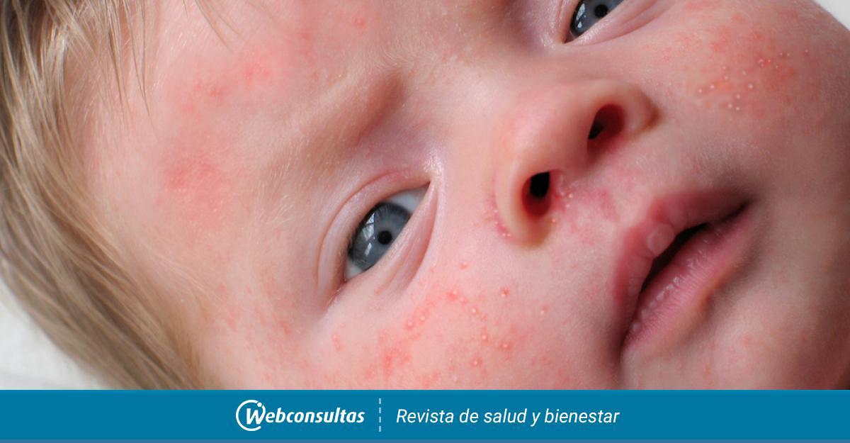 Síntomas Nacido Acné Y EngordaderasQué Recién SonCausas Del OX0wPk8Nn
