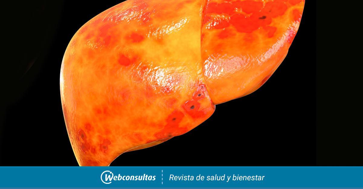 hepatopatia cronica tiene cura