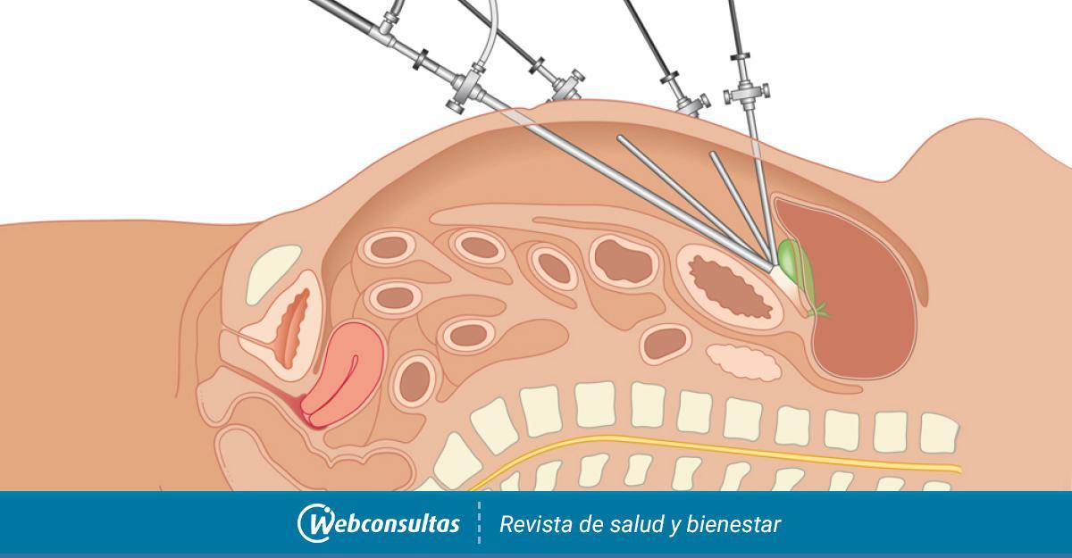 dolor alrededor del ombligo despues de laparoscopia
