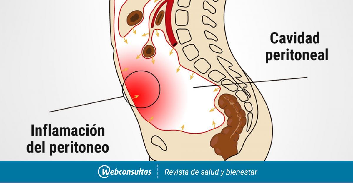 En causas fibrina dialisis