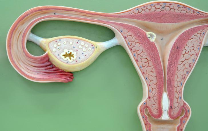 Cáncer de ovario Causas, síntomas y tratamiento