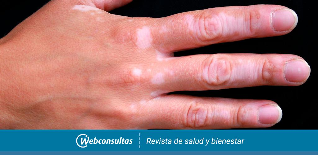 piel descolorida y diabetes