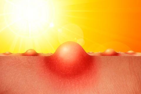 Medicamentos fotosensibles, contraindicados bajo el sol