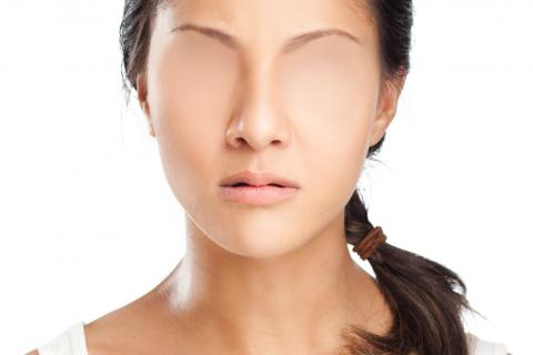 Resultado de imagen de sindrome que no reconoce las caras