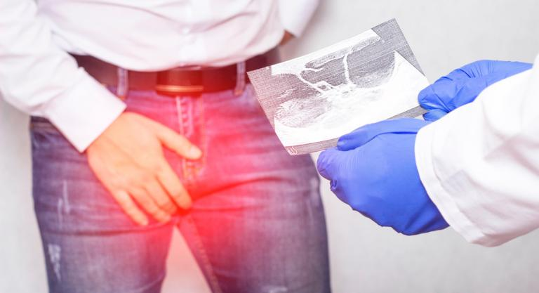Tratamiento del varicocele - Salud al día