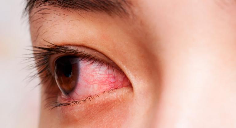 signos y sintomas de las chagas