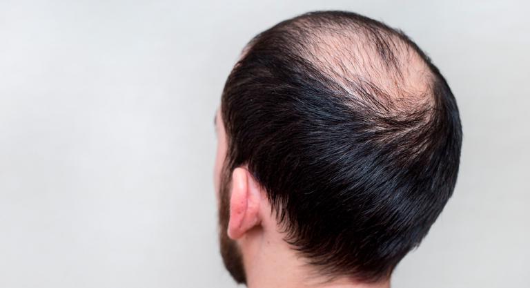 Alopecia Androgenica O Calvicie Comun Que Es Sintomas Y Tratamiento