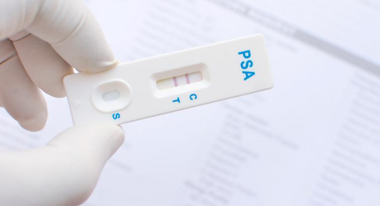 pruebas de prostatitis en orina negativas