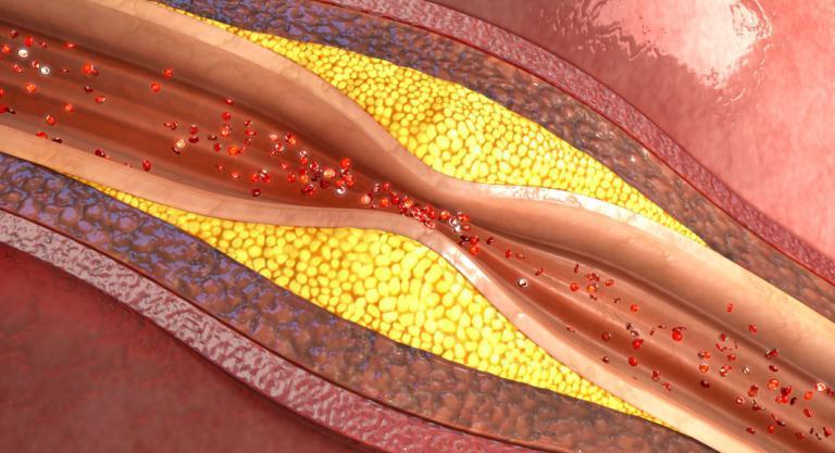 Hipertensión arterial, qué es y causas de la tensión alta