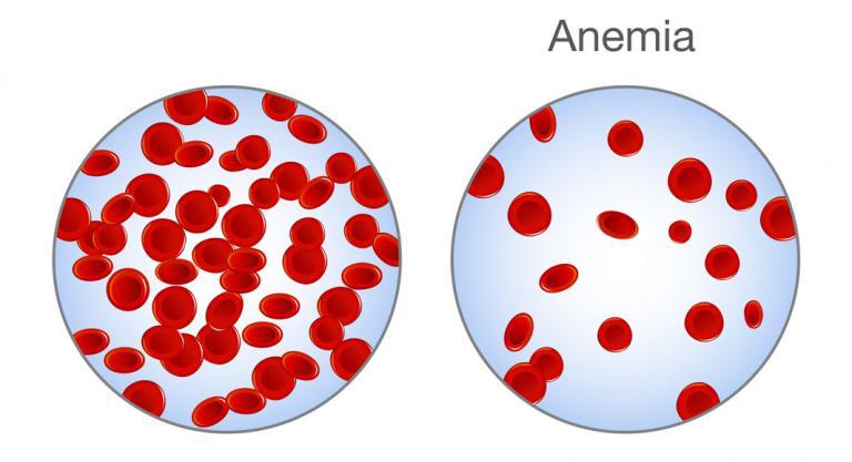 Infograía: anemia