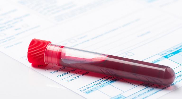 Diagnóstico del beriberi