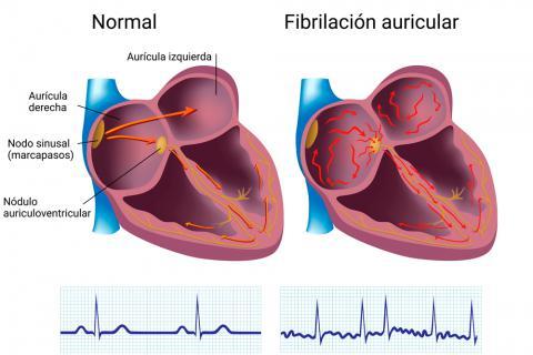 Causas y factores de riesgo de la fibrilación auricular