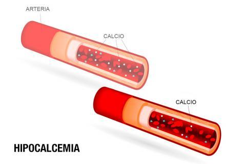 Falta de calcio en sangre sintomas