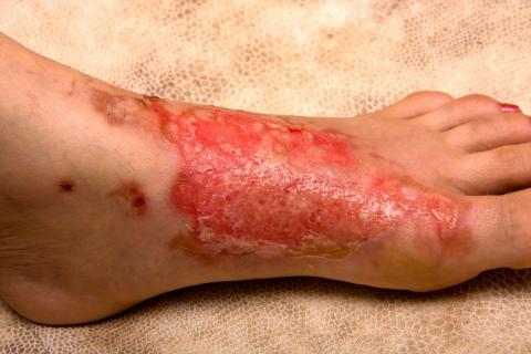 Complicaciones y signos de alarma ante una quemadura